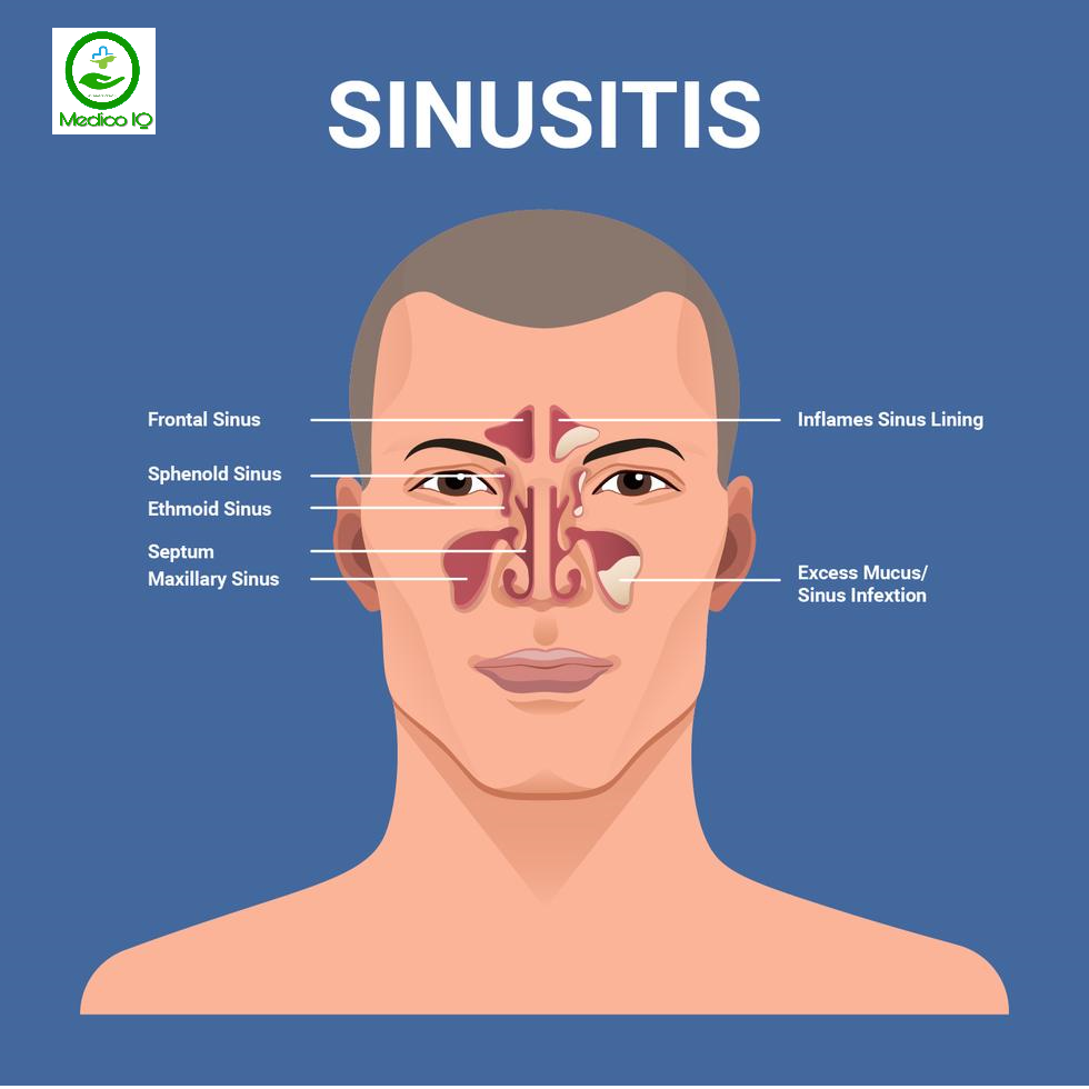 Sinusitis Causes, Symptoms & Treatment ( Sinus Infection ) - Medico IQ